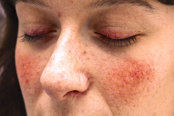 Ocular rosacea can affect your eyes and eyelids