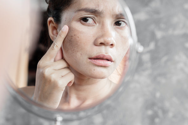concerned woman looking at skin in mirror