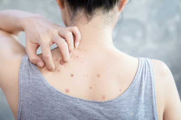 woman scratching back acne bacne