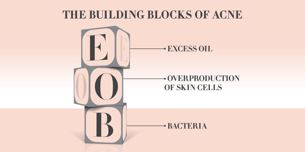 Infographic - The Building Blocks of Acne