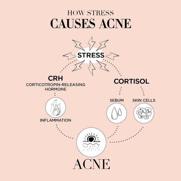 Averr Aglow infographic - How Stress Causes Acne