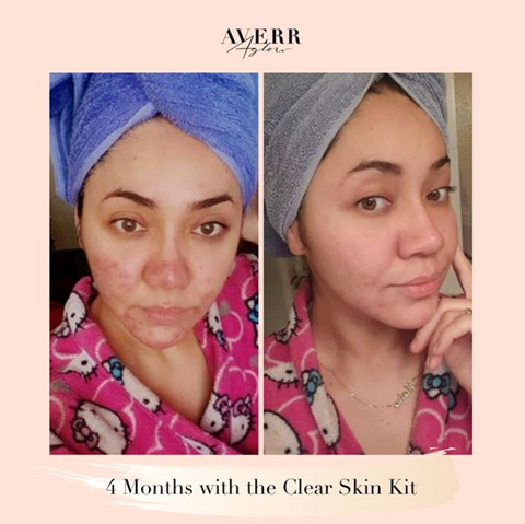 Averr Aglow Customer Before and After