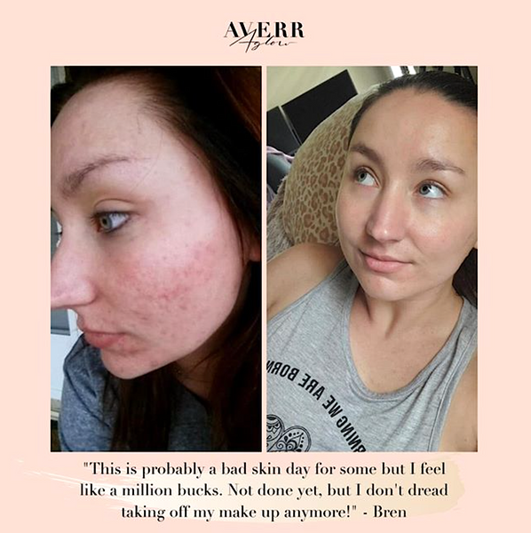 Averr Aglow before and after customer results