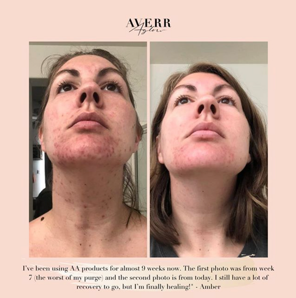 Averr Aglow amazing before and after