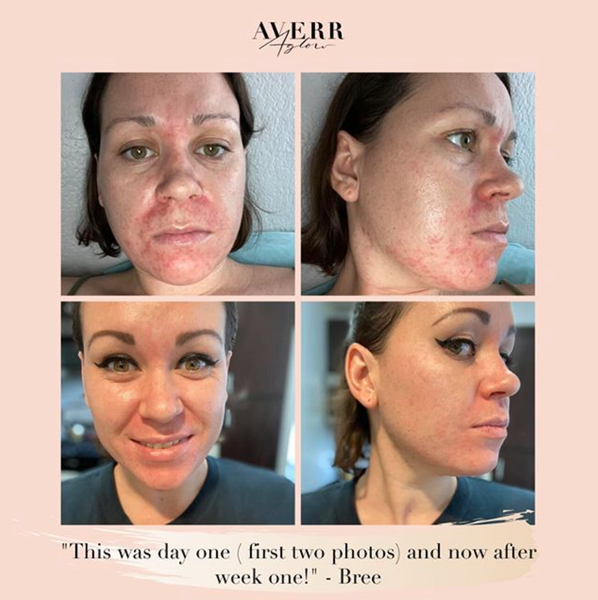 Averr Aglow amazing customer before and after