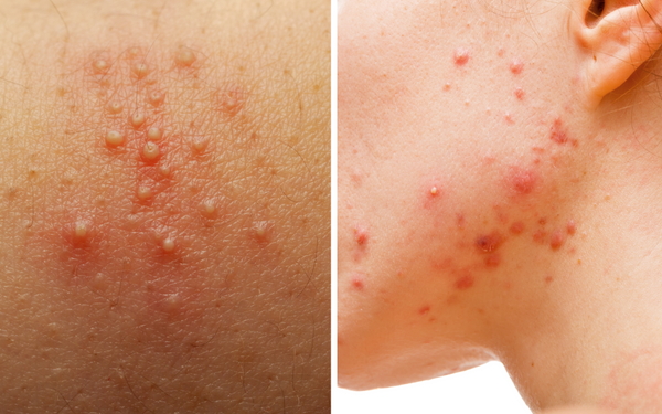 left: fungal skin, right: breakout skin