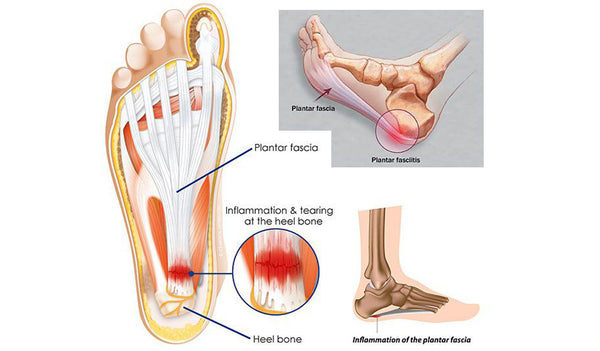 10 Ways To Tame Plantar Fasciitis Therafit Shoe