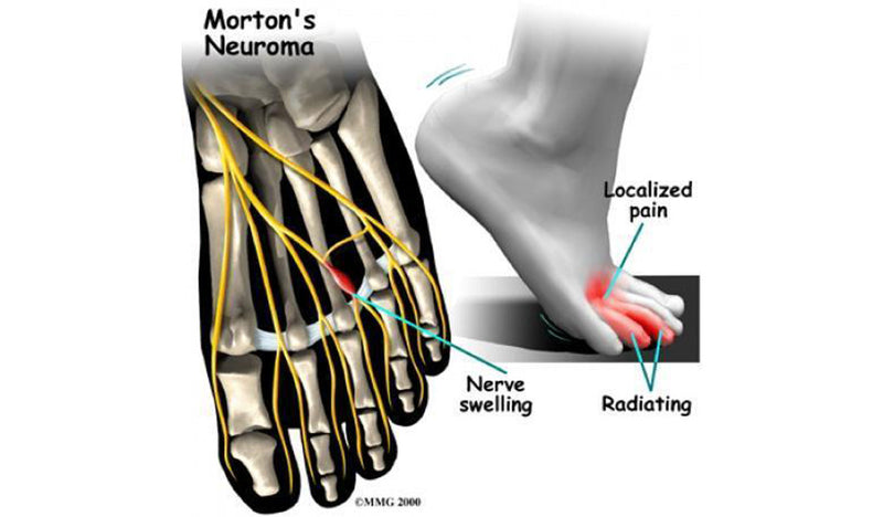 Pain in the Front of the Foot May Be a Neuroma