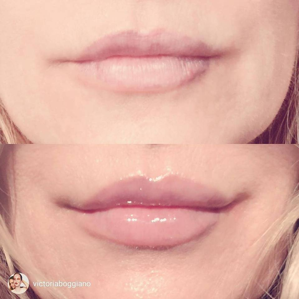 Lip Augmentation Products