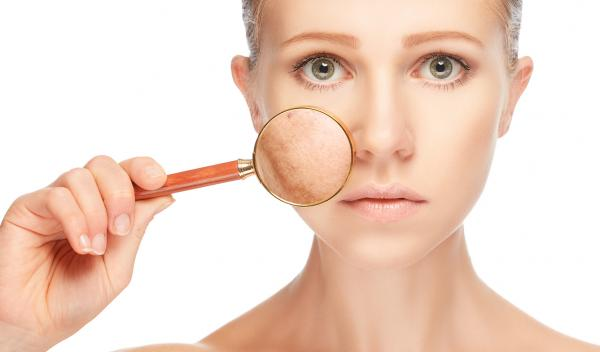 treatment of melasma on face