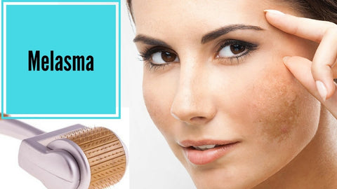 Melasma treatment products