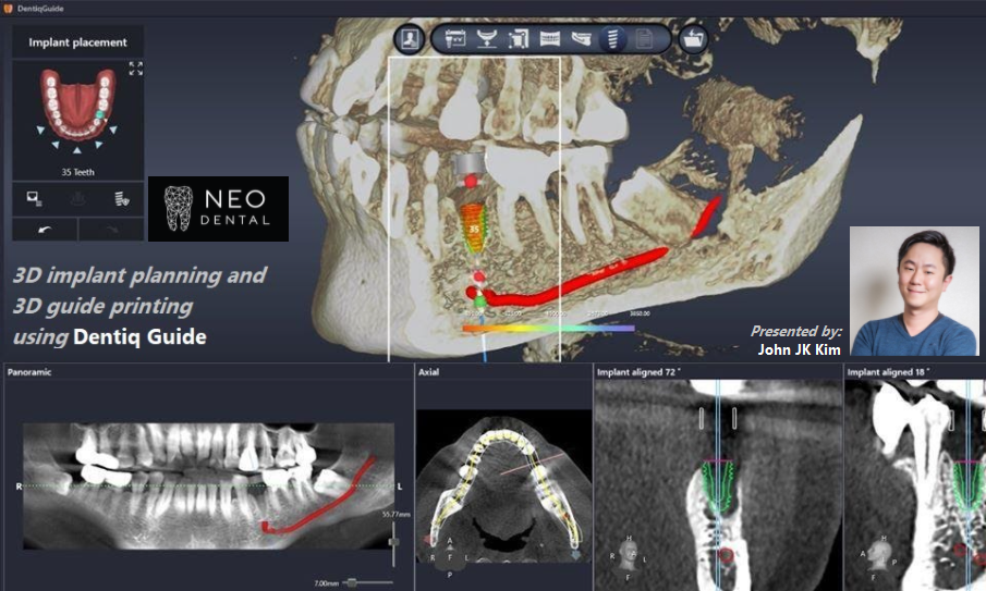 3D Implant Planning and 3D Guide Printing using DentiqGuide