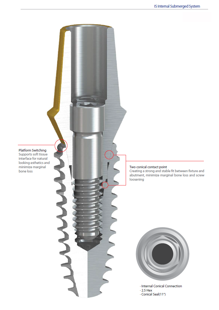 implants screw