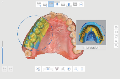 Medit i700 Intraoral 3D Scanner