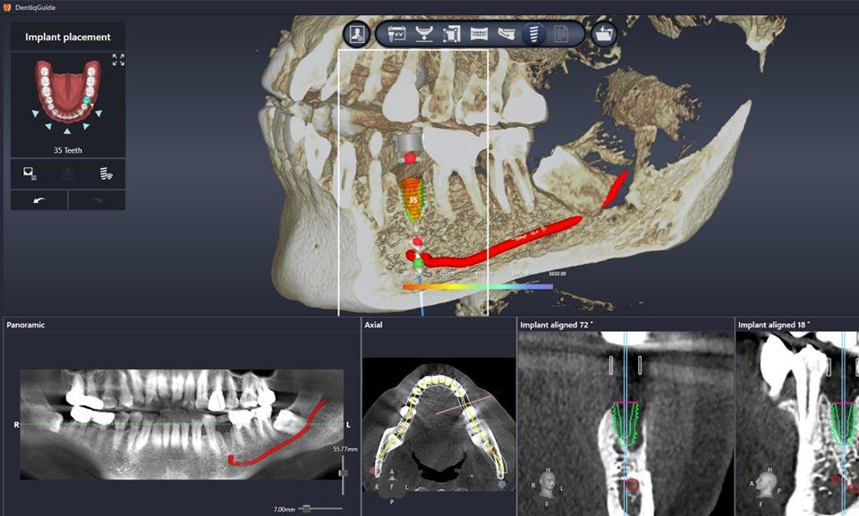 3Dii DentiqGuide - Affordable Implant Planning Software