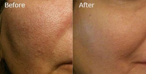 How to shrink large pore before and after by Beauty Mixtress LLC