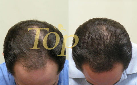hair loss treatment before after