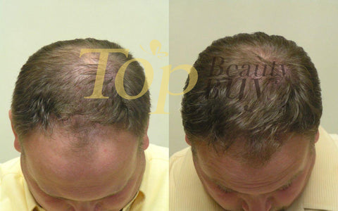 laser hair loss treatment before and after