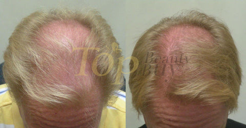 laser hair loss treatment before after