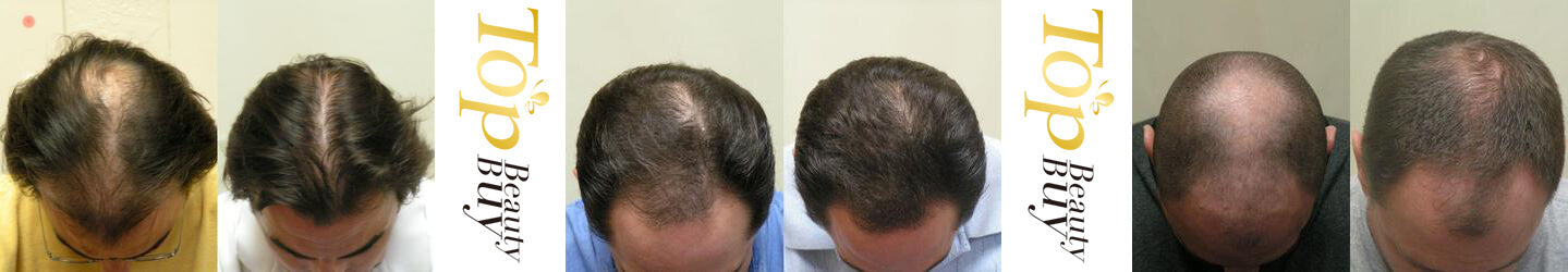 hair loss results