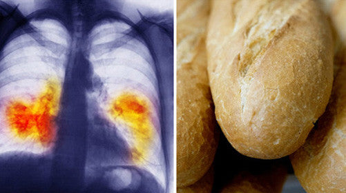 STUDY: EATING WHITE BREAD & BAGELS CAN BE WORSE THAN SMOKING – 49% INCREASE IN LUNG CANCER