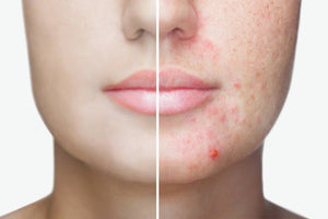 Does Dirty Skin Causes Acne?