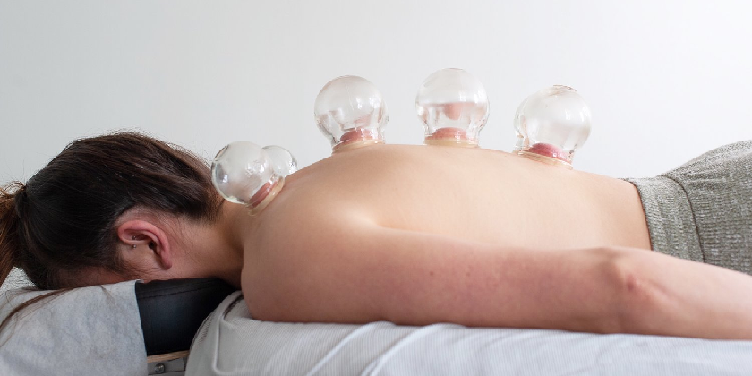 Cupping: What You Need to Know