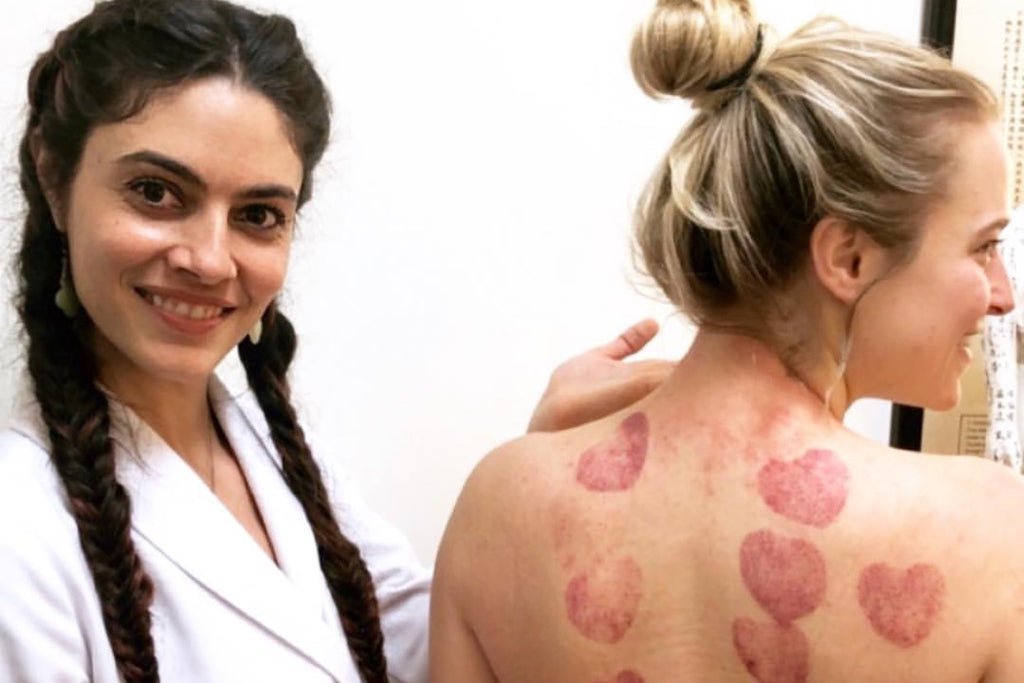Love Cupping with Dr. Kara MoraMarco
