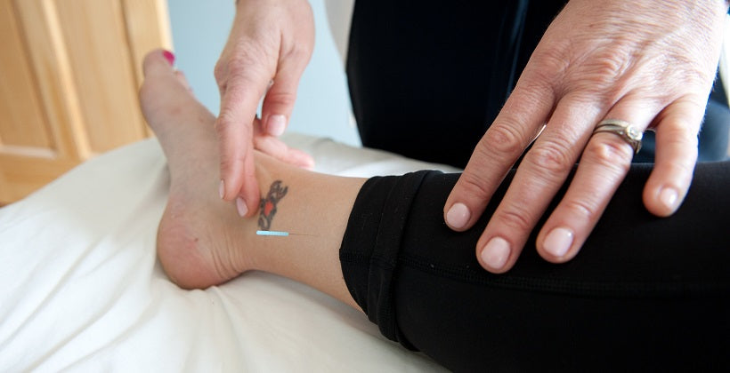 Acupuncture and Self-Care for Plantar Fasciitis