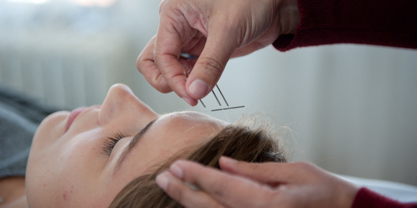 New Year's Resolutions: How Acupuncture Can Help