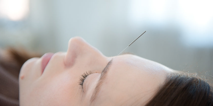 Thinking About Giving Acupuncture a Try?  You're Not Alone.