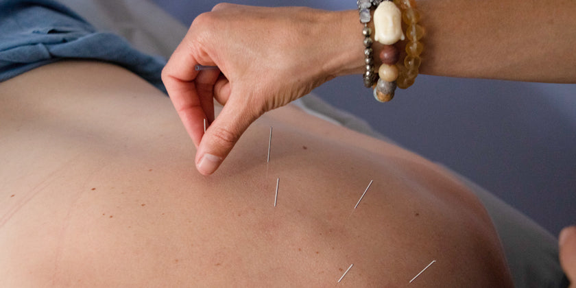 acupuncture immunity