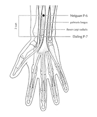 pericardium 6 acupressure point