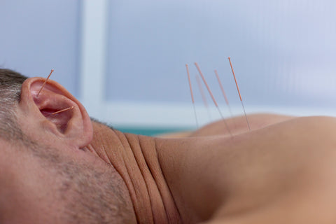 acupuncture athletes