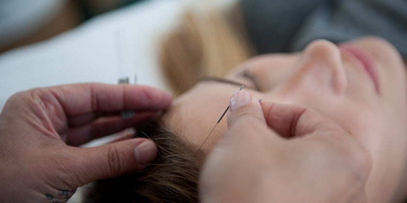 acupuncture womens health
