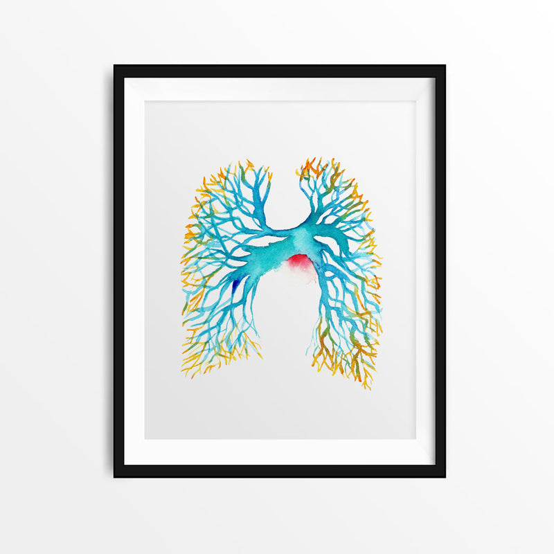 Pulmonary Angiogram - Sandra Black Culliton