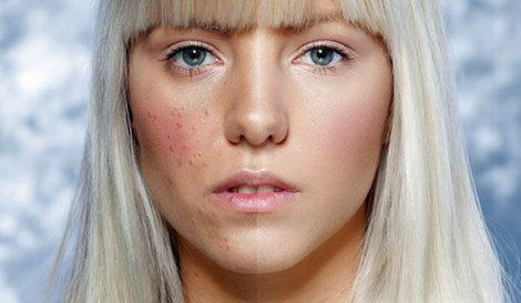 How to make acne a thing of the past
