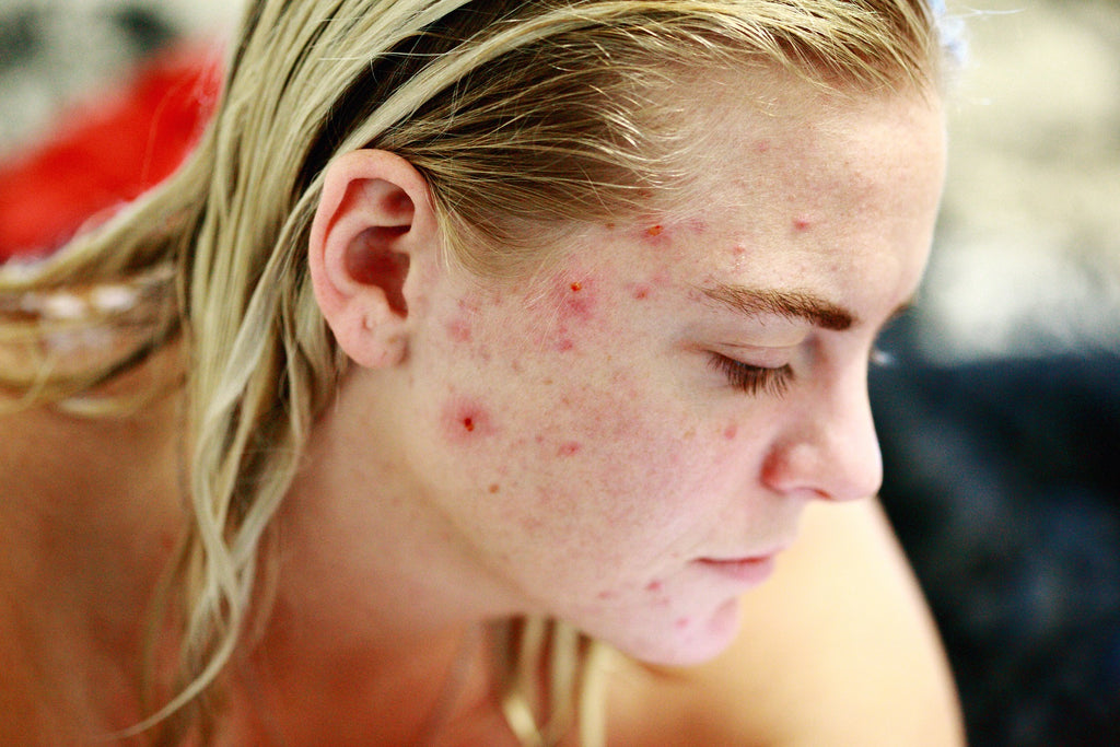 Tips About Acne, Psoriasis and Pimples