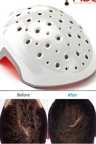 heradome EVO LH40 - Medical Grade Laser Hair Growth Helmet - FDA Cleared for Men & Women. Promotes Hair Regrowth and Prevents Further Hair Loss with Premium Red Light Lasers
