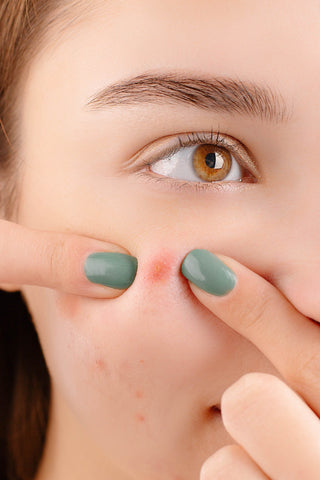 what causes acne cysts on cheeks