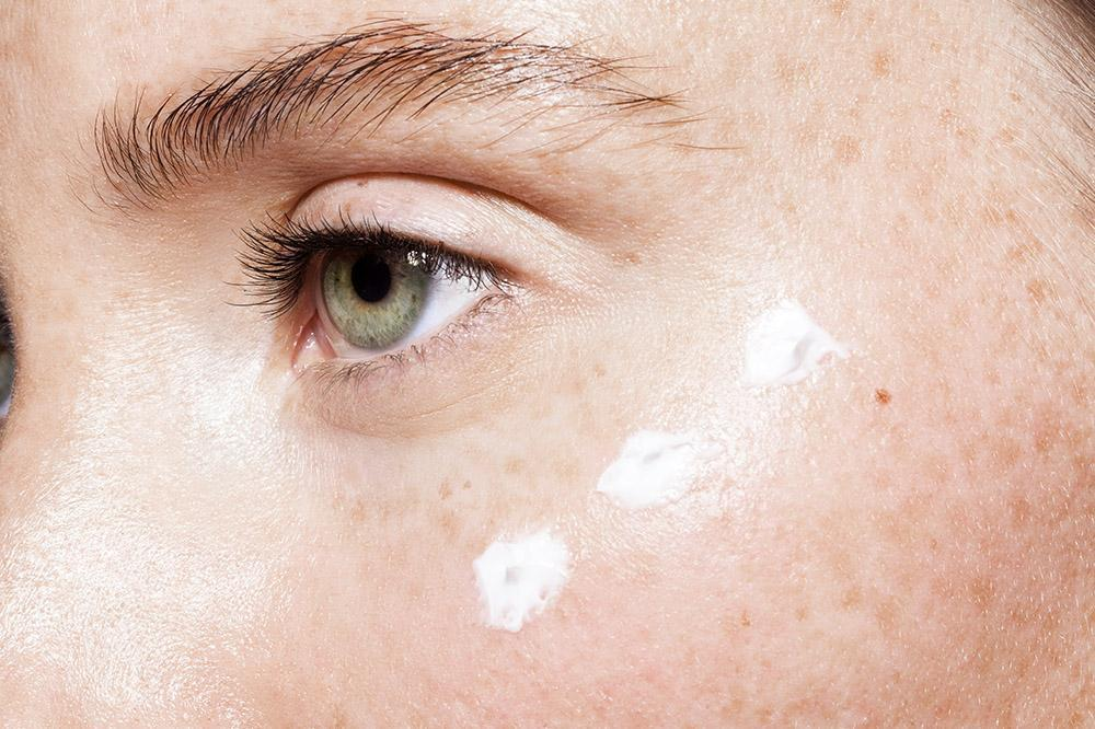 How to Get Rid of Under-eye Bags Like an Esthetician