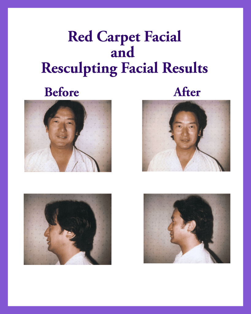 Red Carpet Facial Results!