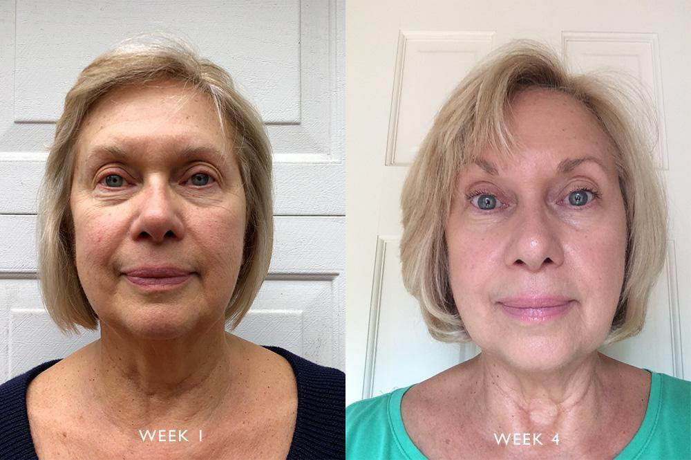 Skin Transformation: Nancy's Routine For Elasticity and Rosacea