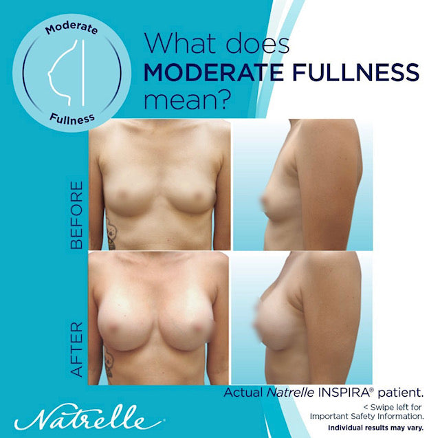 Not Too Big, Not Too Small:  Just Right:  Moderate Profile Implants