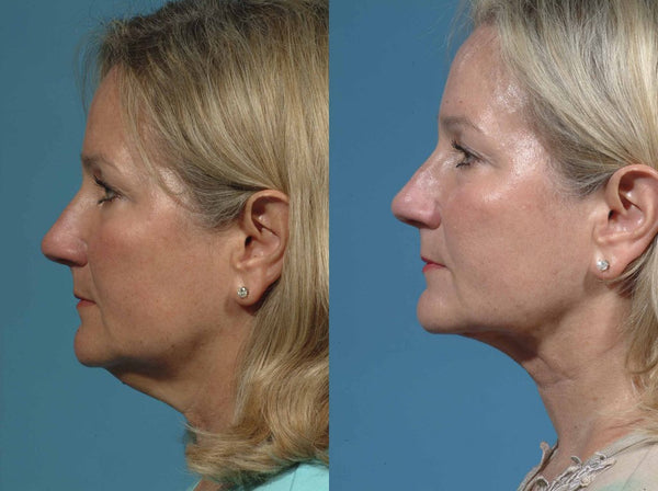 The How, What, Where and Why About Neck Lifts