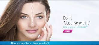 Advanced Treatment Options for Acne Scars