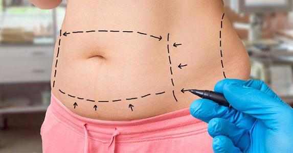 What You Should Know Before Tummy Tuck Surgery