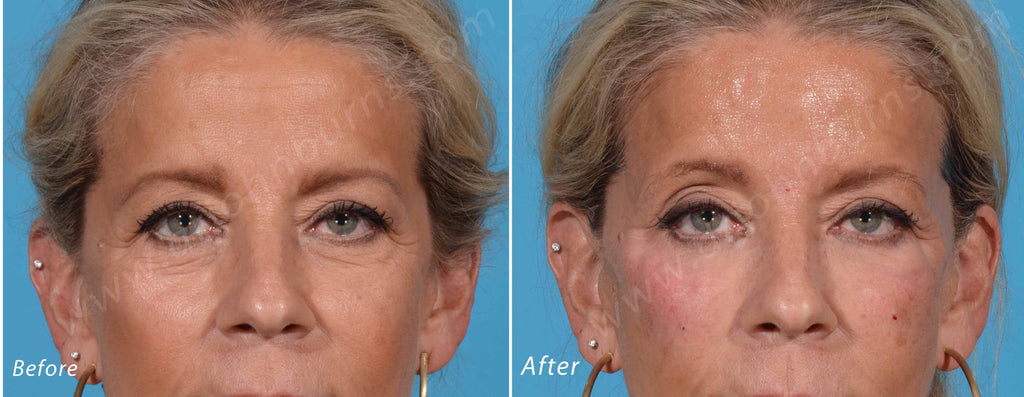 Radiesse Facial Filler – Dr John Burns
