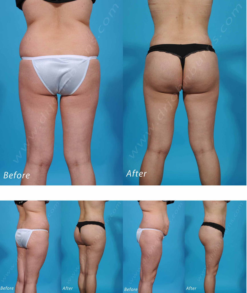 Butt Augmentation: Brazilian Butt Lift – Dr John Burns