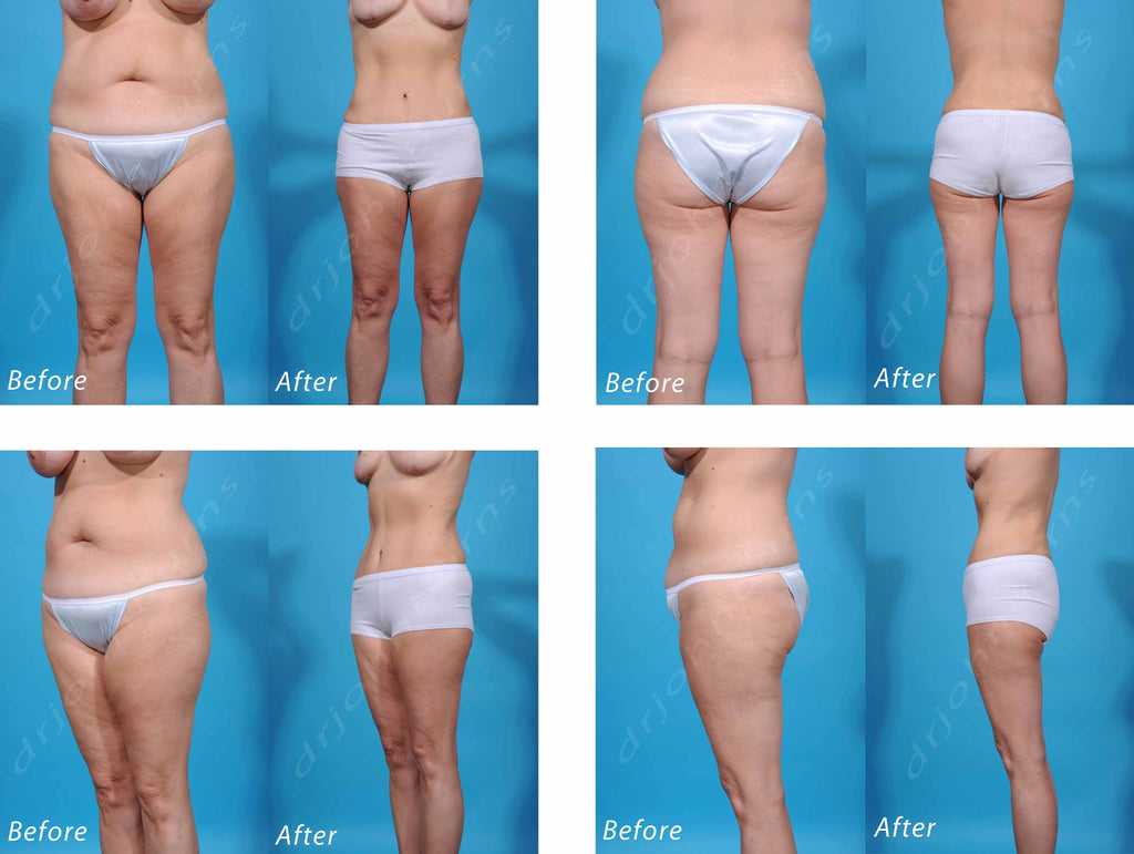 Liposuction Before And After Photo Gallery Dr John Burns